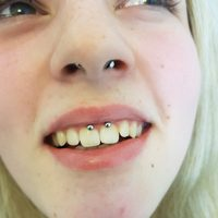 David Detre: Piercing, Septum Smiley, Nase, Lippenbaendchen