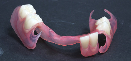 Prothesen aus Valplast