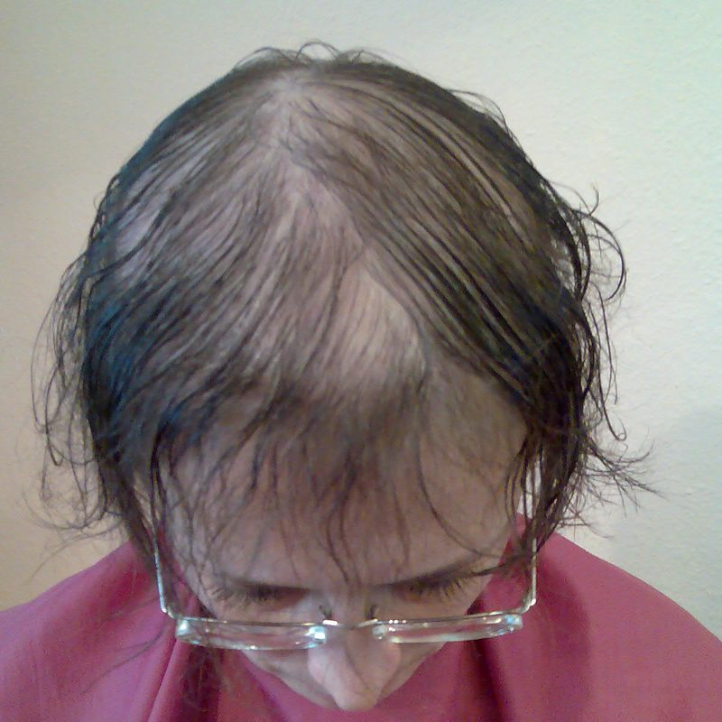 Haarteile - Schritt 1