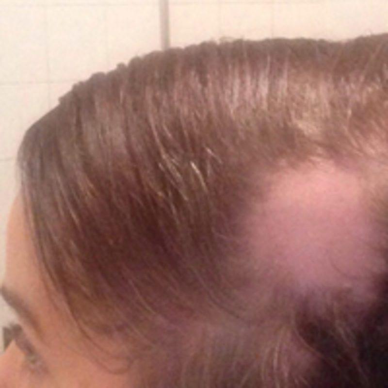 Haarteile - Schritt 2